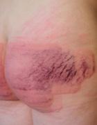 Two Russian girl bottoms beaten, pic #12